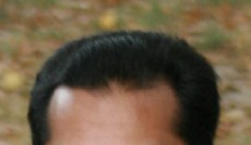 hair_growth_frontal